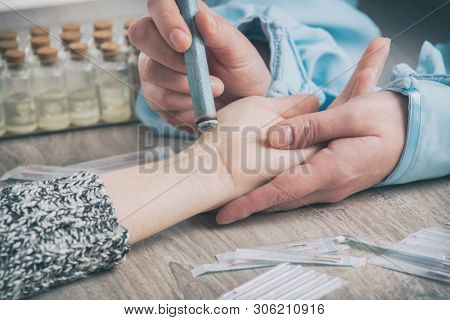 Alternative medicine therapist doing moxa treatment on her client poster