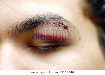Injured Eye