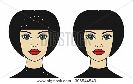 Woman With Dandruff Falling On Her Shoulders, Before And After Therapeutic Anti-dandruff Shampoo, Pe