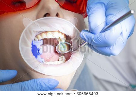 treatment of tooth decay. girl at the reception at the dentist. the doctor drilled a tooth boron machine removed caries. the tooth is prepared for applying a filling material. poster