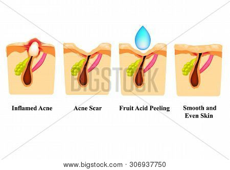 Inflamed Acne On The Skin. Inflamed Pimple. Acne Scar. Acid Peeling Treatment. The Structure Of The