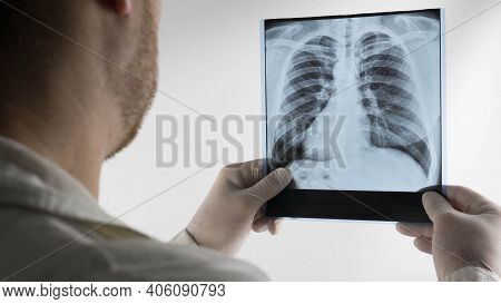 X-ray Of The Human Lungs On An Abel Background, Respiratory Disease, A Doctor In The Clinic With An