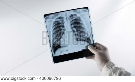 X-ray Of Human Lungs On A White Background At A Doctor In The Hands Of An X-ray Lung, A Medical Work