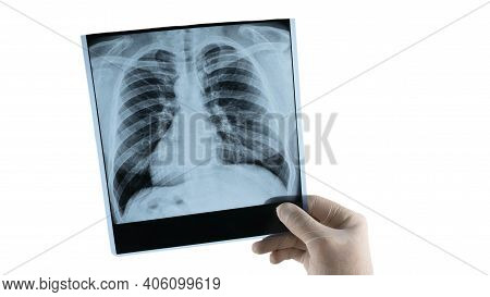 Human Lung X-ray Analysis, Doctor Examines Lung Disease. Pneumonia. Lung X-ray Isolated On White Bac