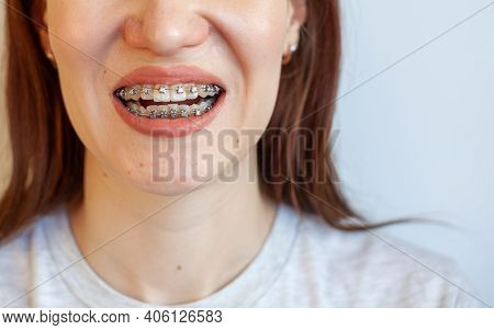 Braces In The Smiling Mouth Of A Girl. Close-up Photos Of Teeth And Lips. Smooth Teeth From Braces.