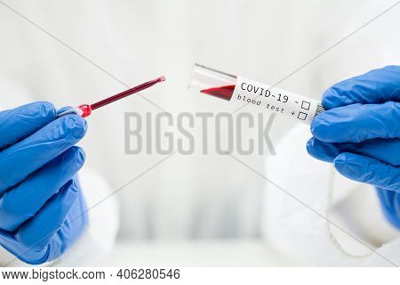 Lab Technician Dropping Blood Sample In Test Tube Container Using Pipette,covid-19 Blood Test Proced