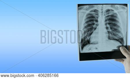 X-ray Of The Lungs On A Blue Medical Background With Copy Space For Text For Inserting Items, X-ray