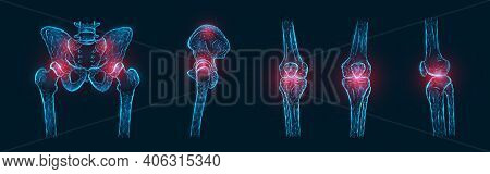 Polygonal Vector Illustration Of Pain Or Inflammation Of The Bones In The Pelvis, Hip Joint, And Kne