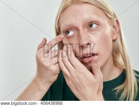 Young Caucasian Man With Long Fair Hair Inserting Contact Lens From Finger Into Eye While Standing O