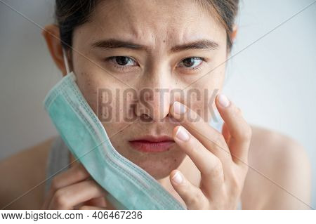 Asian Woman Worry About Acne Occur On Her Face After Wearing Mask For Long Time During Covid-19 Pand