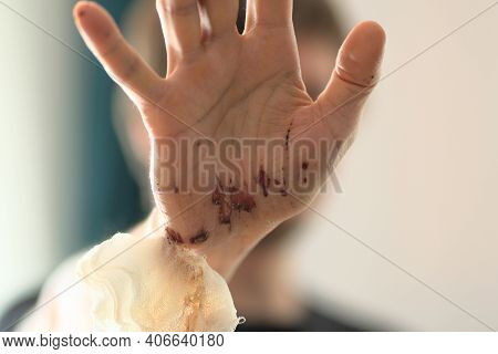 Abrasions On The Palm Of The Right Hand Of An Adult Man. Home Treatment. Removing The Bandages. Clos