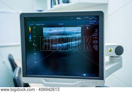 Image Of Modern Ultrasound Monitor. Ultrasonography Machine