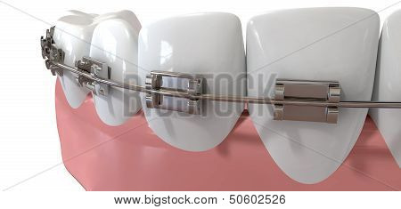 An extreme closeup of a set of false human teeth with a set of metal orthodontic braces on an isolated background poster
