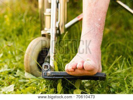Arteriosclerotic Old Leg