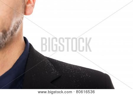 Close Up From A Man With Dandruff