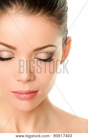 Asian monolids plastic surgery concept - woman with correction marks to have double eyelids made.