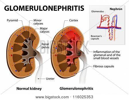 Glomerulonephritis Or Glomerular Nephritis. Kidney Disease