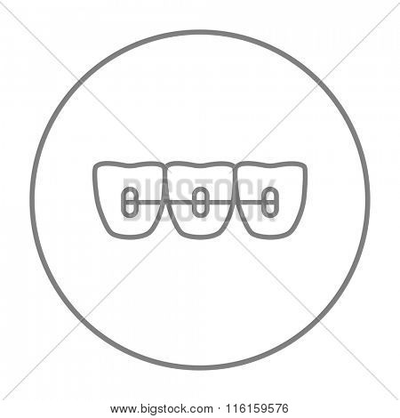Orthodontic braces line icon.