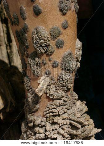 Dede Koswara, the 'Tree Man of Indonesia'