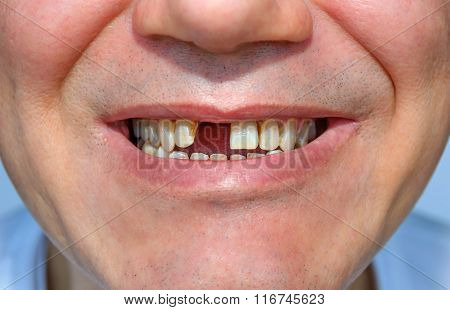 Smile Without Tooth1