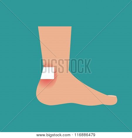 Callus On The Foot. Vector Illustration