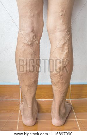 terrible irregular varicose veins on woman legs poster