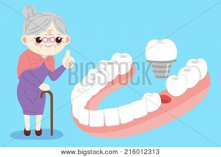 old woman with implants tooth on the blue bakcground