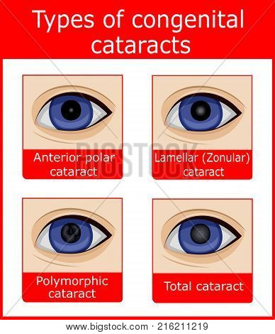 Four types of congenital cataracts, such as anterior polar, lamellar, polymorphic and total