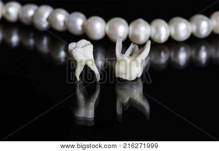 two bad rotten tooth pulled out and lie opposite the dazzling white pearls on a black isolated background
