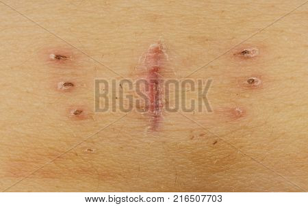 Close-up macro of a scar with bruise near navel as result of hysterectomy, with butterfly shape
