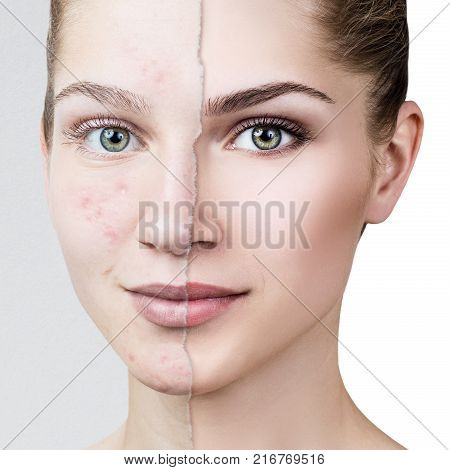 Comparison portrait of old photo with acne and healthy skin of young girl. Skincare concept.