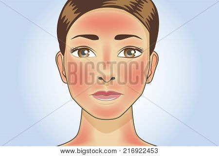 Skin redness appear on facial and neck of woman from sunburn. Illustration about danger of Ultraviolet radiation.