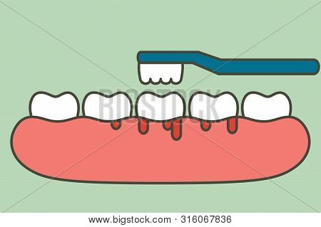 Brushing Teeth With Bleeding On Gum And Tooth, Gingivitis Or Scurvy Concept - Dental Cartoon Vector