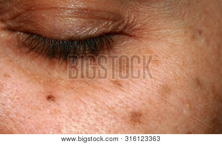 Brown Spots On The Face. Pigmentation On The Skin. Brown Age Spots On The Cheek.