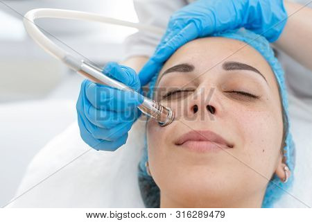 Beautician Procedure Diamond Microdermabrasion Patient Face. A Young Girl Is Undergoing A Course Of