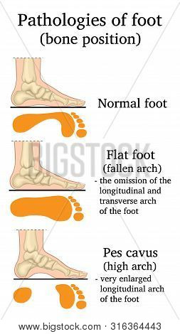 Illustration Of The Location Of Bones In Pathologies Of The Foot