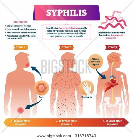 Syphilis Vector Illustration. Labeled Sexual Infection Explanation Scheme. Anatomical Infographic Wi