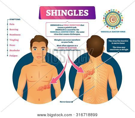 Shingles Vector Illustration. Labeled Medical Skin Virus Explanation Scheme. Varicella Zoster Illnes