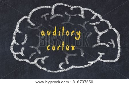 Drawind Of Human Brain On Chalkboard With Inscription Auditory Cortex.