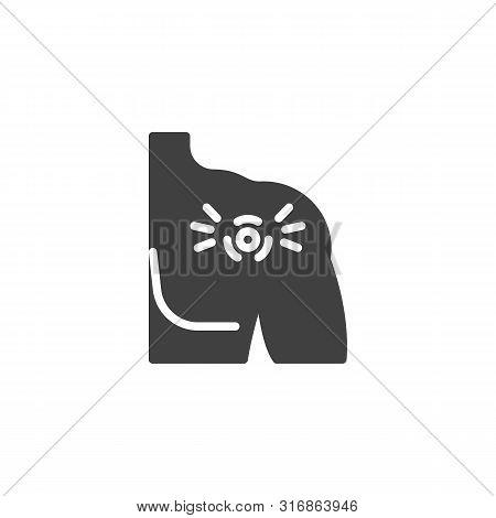Shoulder Joint Pain Vector Icon. Filled Flat Sign For Mobile Concept And Web Design. Shoulder Injury