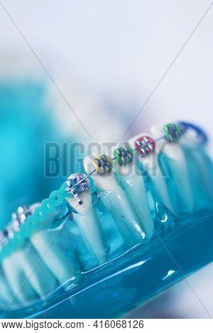 Dental Teeth Aligners Brackets