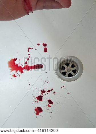 Blood Spills Into A White Sink In The Bathroom. Man Hand Scratched By A Pet Over The Bathroom Sink.