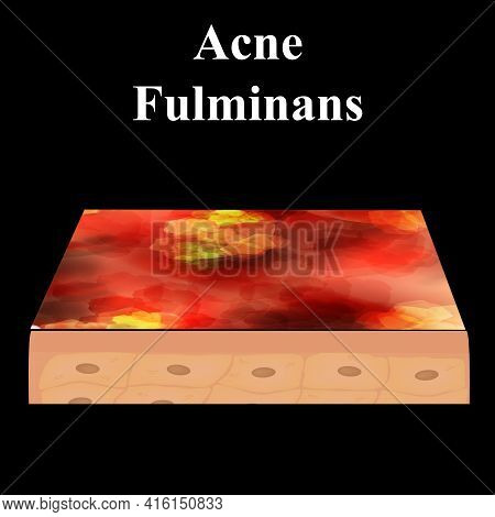 Cyst Acne. Furuncle Acne On The Skin Cysts And Pimples. Dermatological And Cosmetic Inflammatory Dis