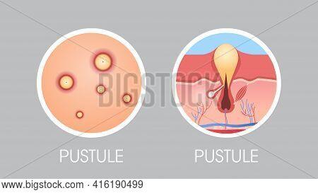 Skin Pastule Pimples Acne Type Face Pore Comedones Cosmetology Skincare Problems Concept Flat Horizo