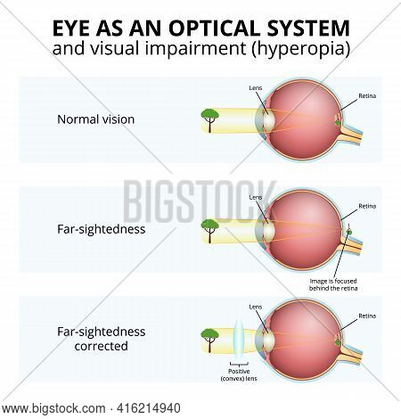 Structure Of The Eyeball, Visual Impairment, Farsightedness