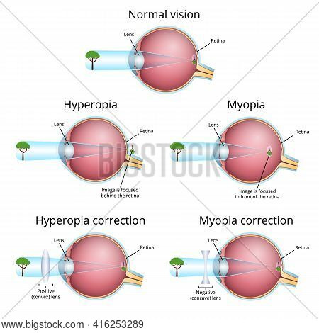 Visual Impairment, Correction Of Vision Defects, Nearsightedness And Farsightedness