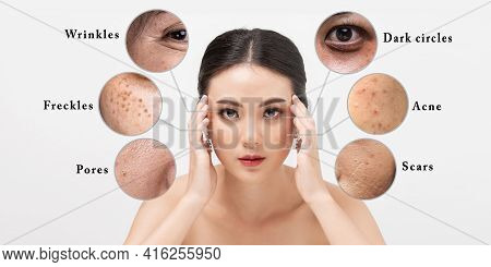 Asian Woman With Facial Skin Problems. Young Female Anxious About Face Skin Health. Facial Skin Prob