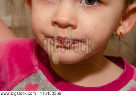 A Cold Little Girl Has Snot Running Out Of Her Nose.