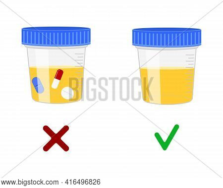 Urinalysis, Urine Samples With And Without Drugs. Doping Control In Sport, Post Accident Drug Testin