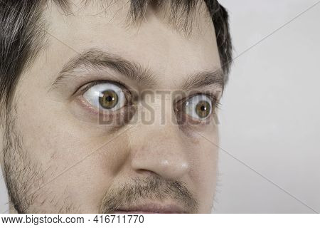 A Pop-eyed Man With Graves Disease Toxic Diffuse Goiter, Hyperthyroidism. Enlarged Thyroid Gland And